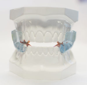 Oral Appliance Therapy Option Oravan