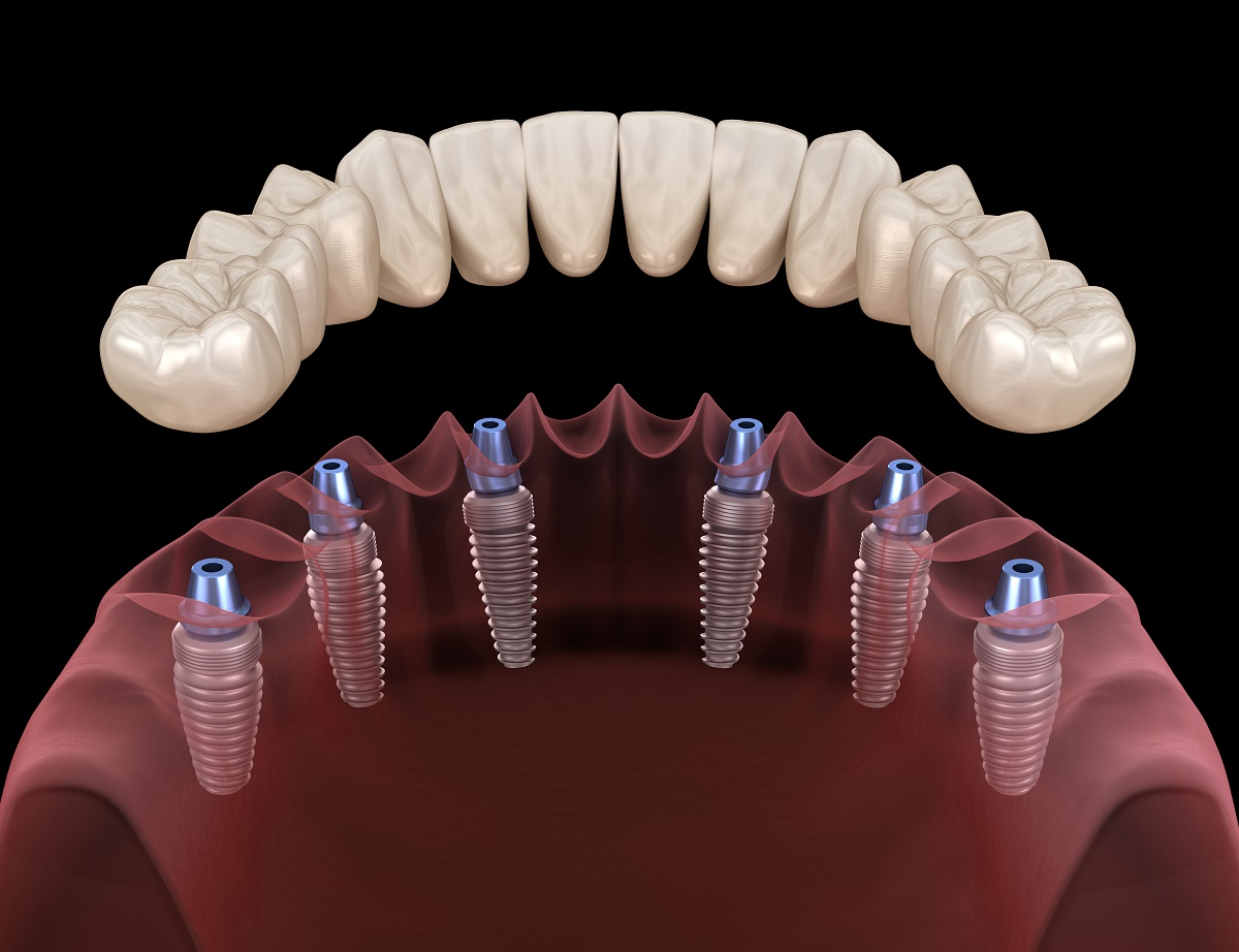 Oral Appliance Therapy in New Jersey
